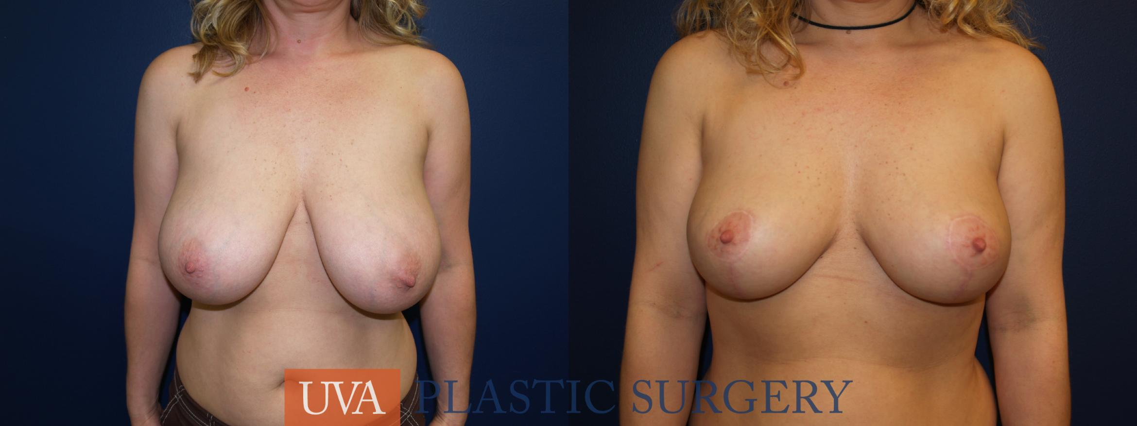Breast Reduction Case 4 Before & After View #1 | Charlottesville & Fishersville, VA | University of Virginia Plastic Surgery