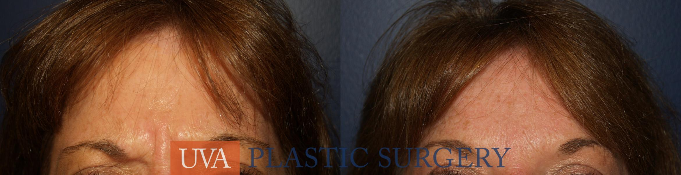 Dermal Fillers Case 17 Before & After View #1 | Charlottesville & Fishersville, VA | University of Virginia Plastic Surgery