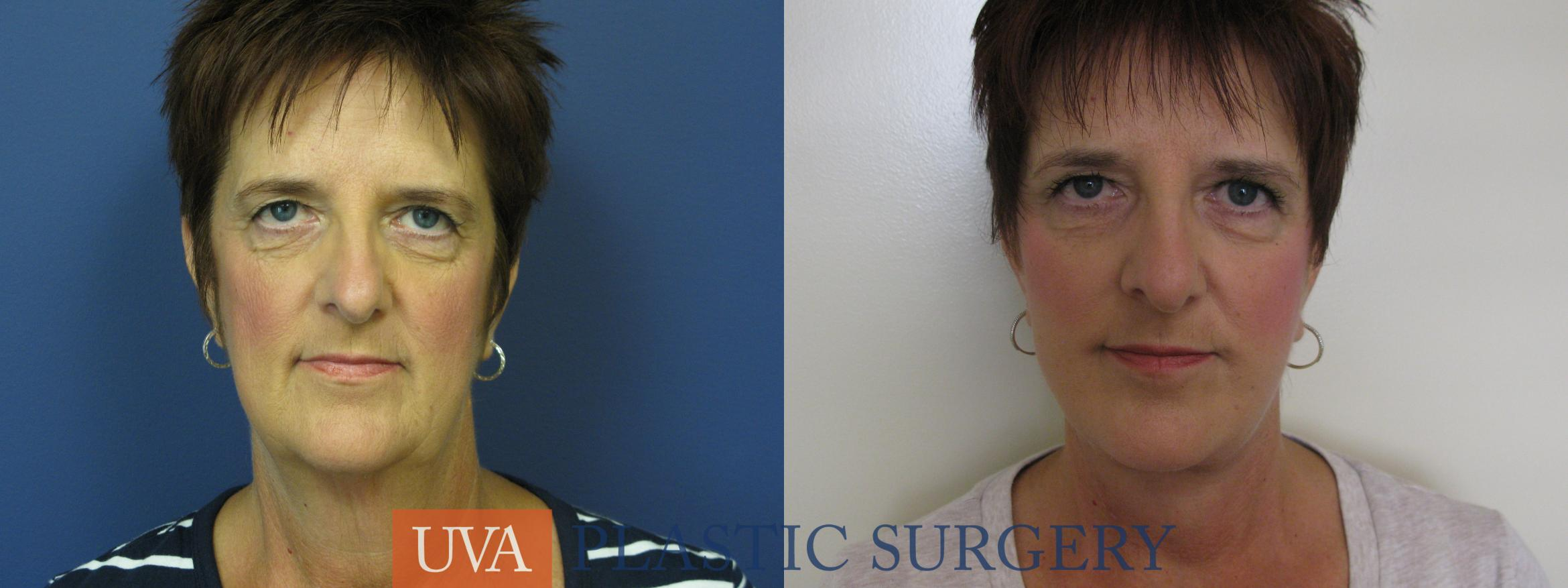 Facelift Case 111 Before & After View #1 | Charlottesville & Fishersville, VA | University of Virginia Plastic Surgery