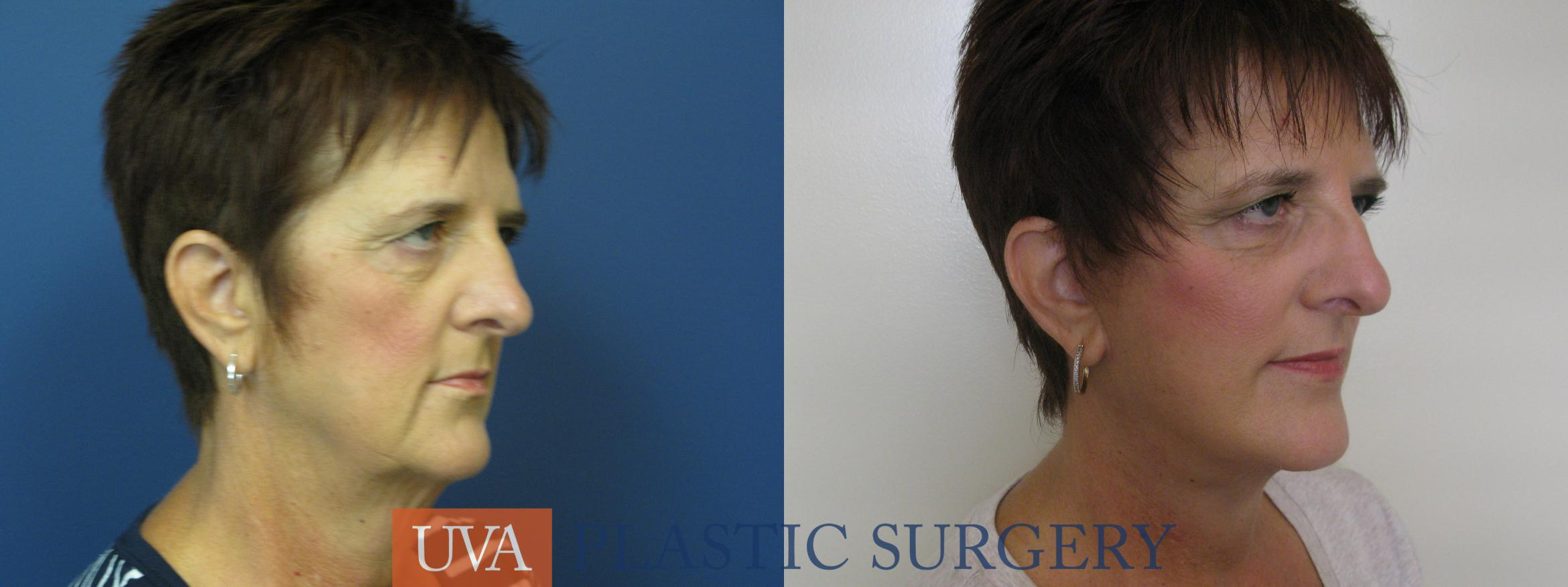 Facelift Case 111 Before & After View #2 | Charlottesville & Fishersville, VA | University of Virginia Plastic Surgery