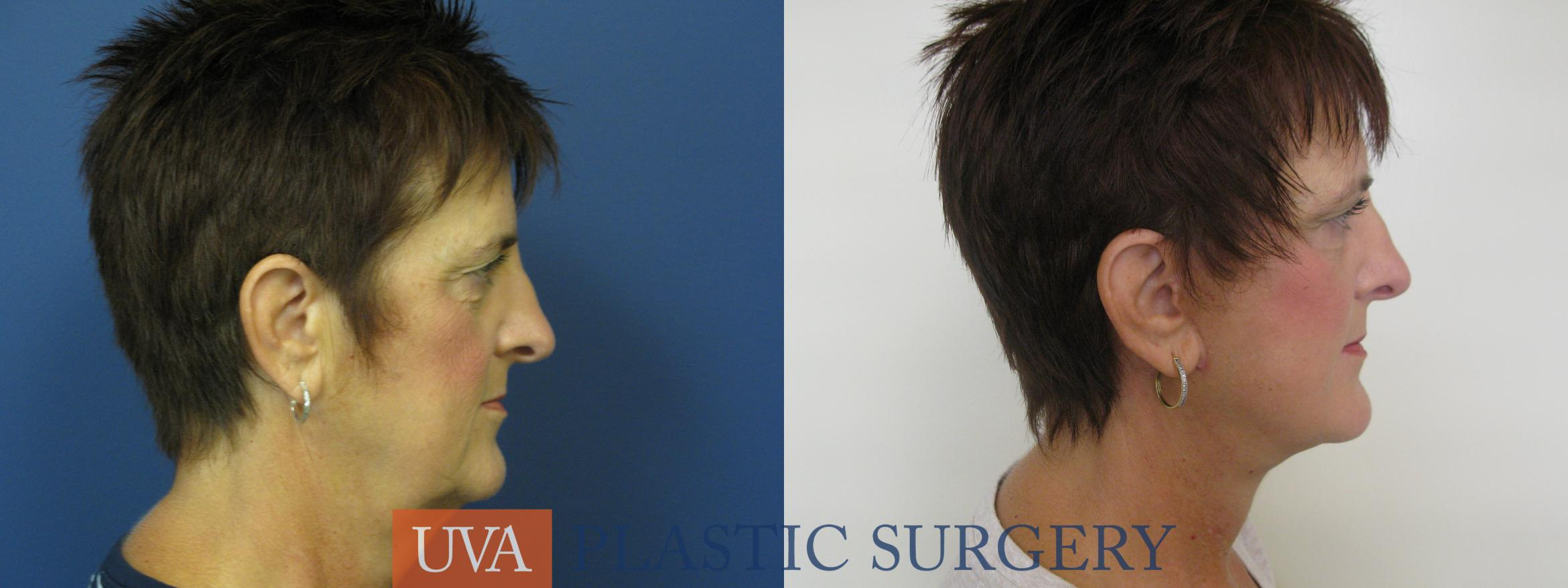 Facelift Case 111 Before & After View #3 | Charlottesville & Fishersville, VA | University of Virginia Plastic Surgery