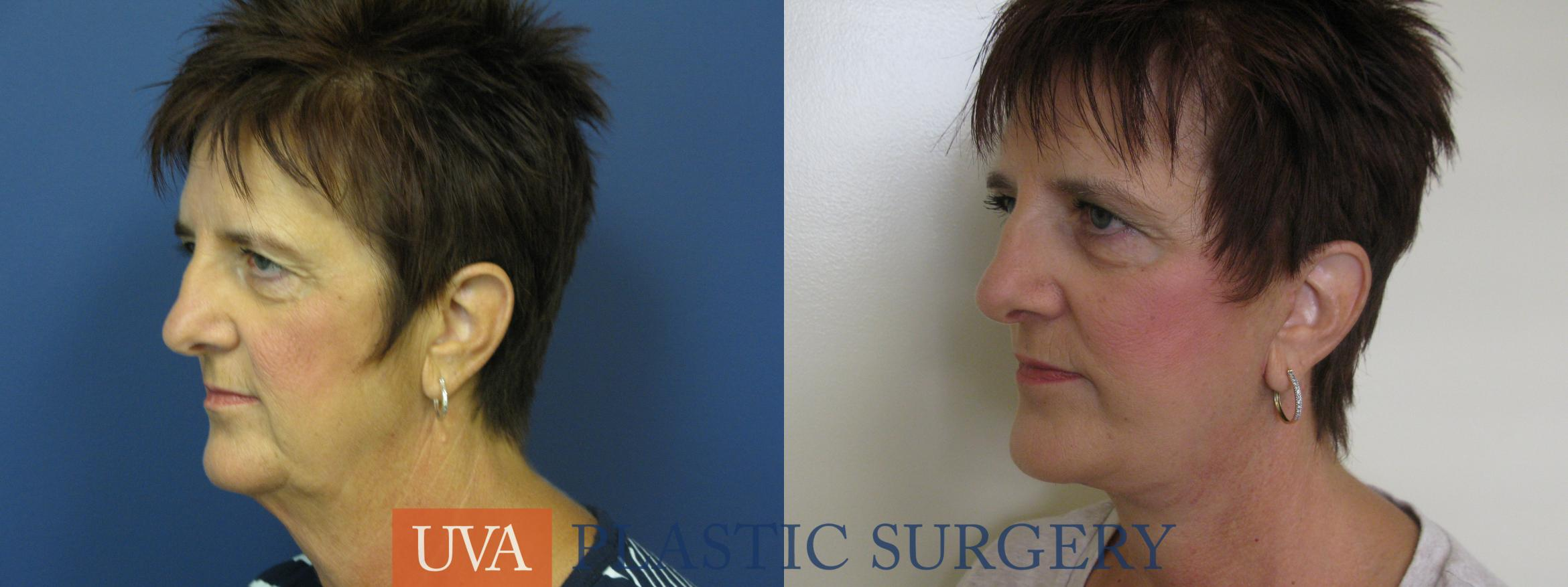Facelift Case 111 Before & After View #4 | Charlottesville & Fishersville, VA | University of Virginia Plastic Surgery