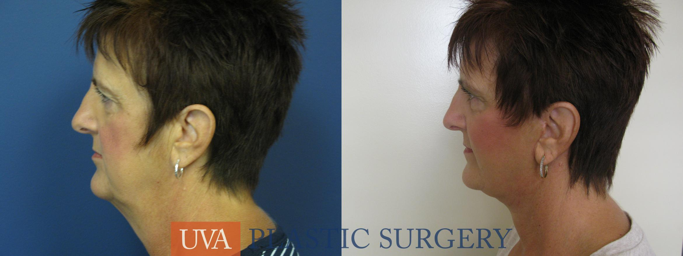 Facelift Case 111 Before & After View #5 | Charlottesville & Fishersville, VA | University of Virginia Plastic Surgery