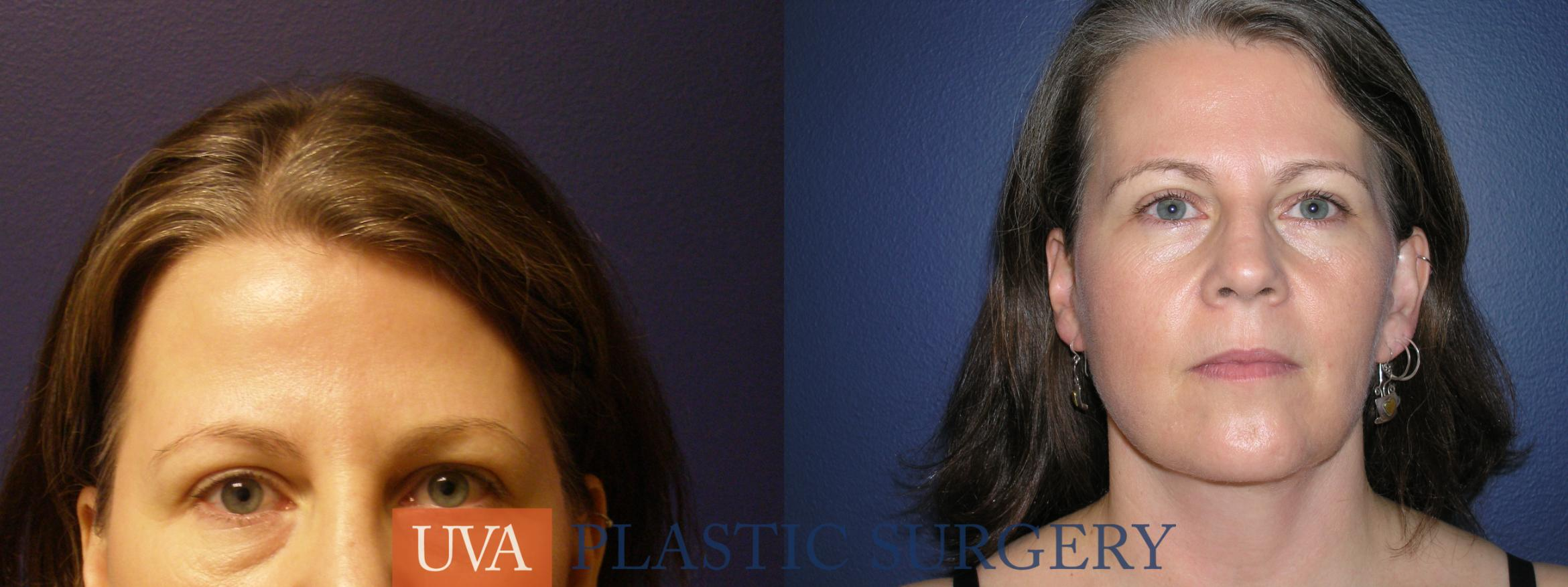 Facelift Case 9 Before & After View #1 | Charlottesville & Fishersville, VA | University of Virginia Plastic Surgery