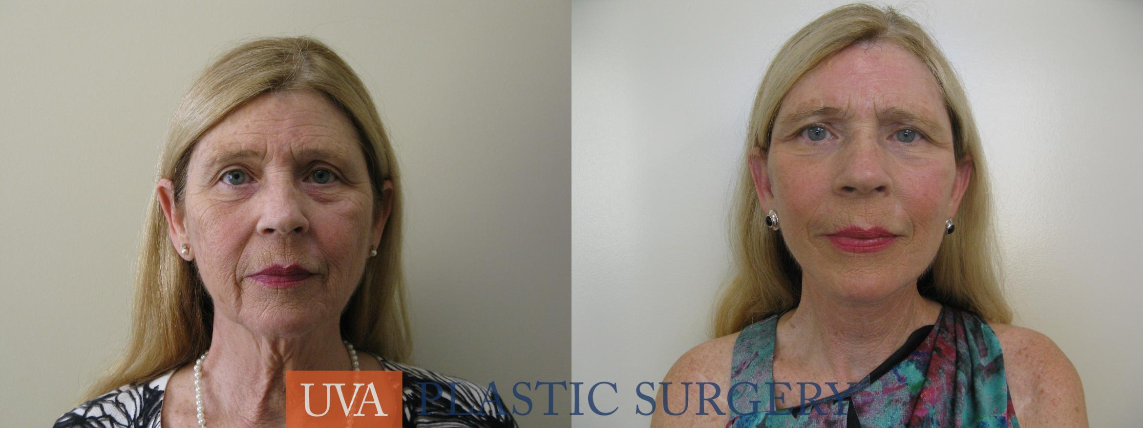 Necklift (Cervicoplasty) Case 80 Before & After View #1 | Charlottesville & Fishersville, VA | University of Virginia Plastic Surgery