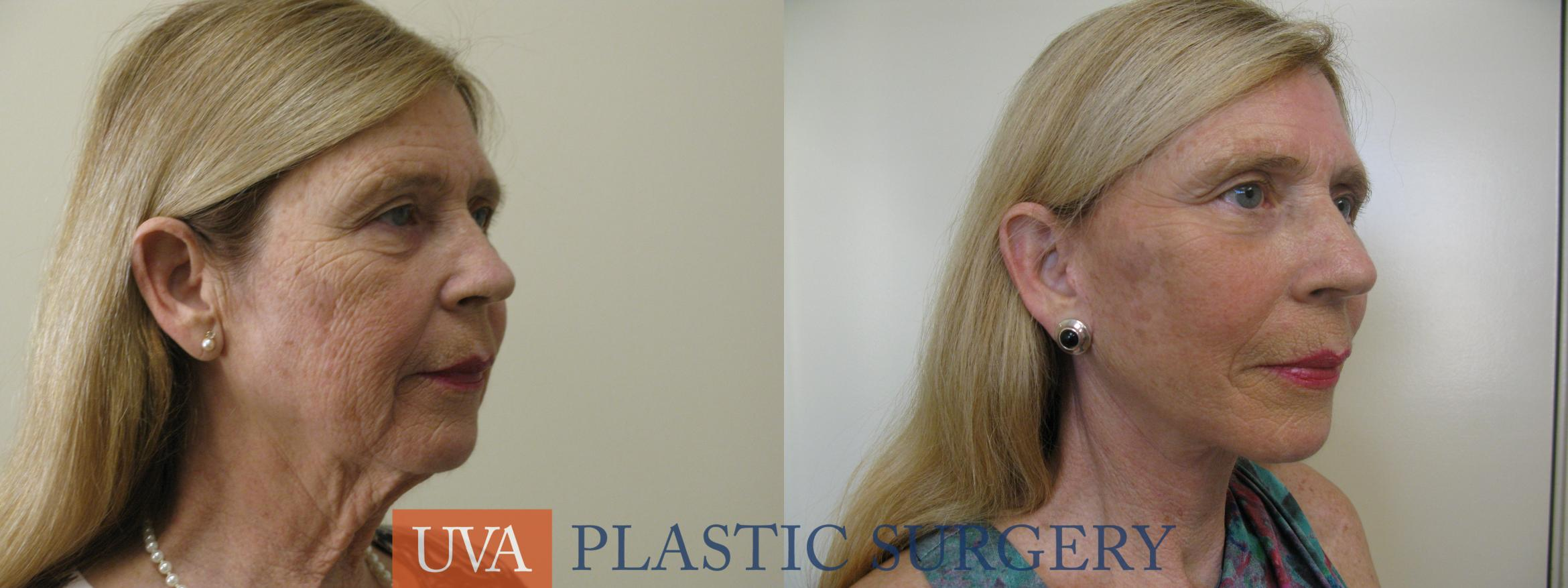 Necklift (Cervicoplasty) Case 80 Before & After View #2 | Charlottesville & Fishersville, VA | University of Virginia Plastic Surgery