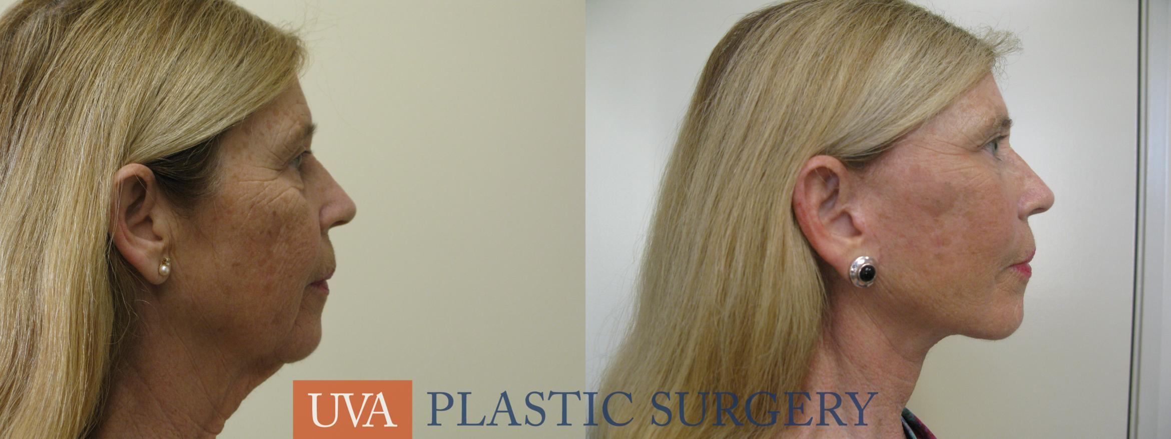Necklift (Cervicoplasty) Case 80 Before & After View #3 | Charlottesville & Fishersville, VA | University of Virginia Plastic Surgery