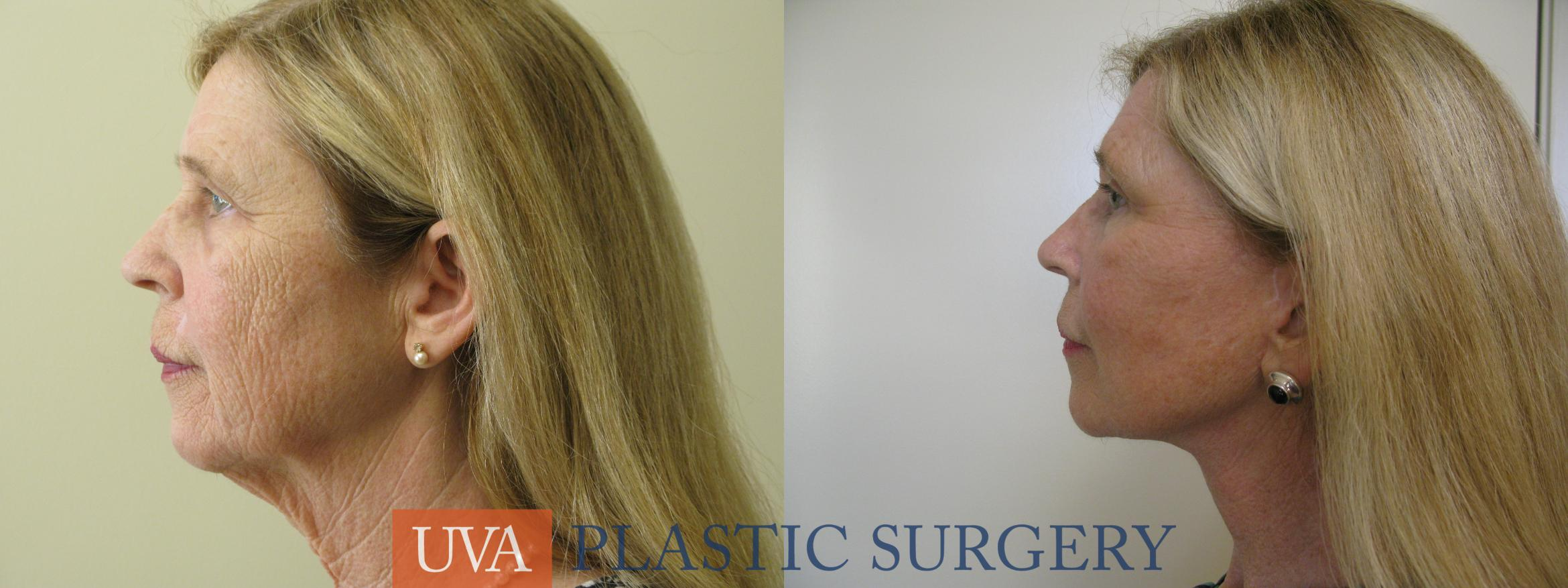 Necklift (Cervicoplasty) Case 80 Before & After View #5 | Charlottesville & Fishersville, VA | University of Virginia Plastic Surgery