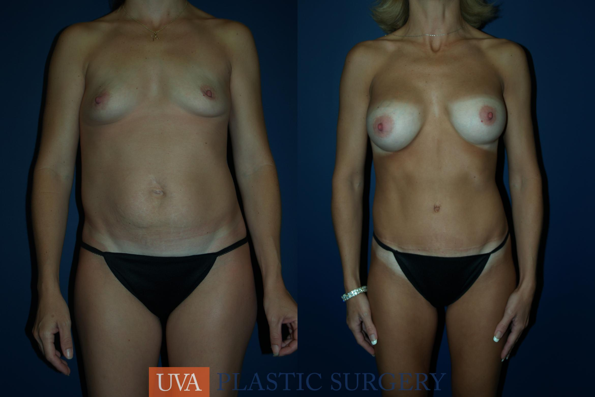 Tummy Tuck (Abdominoplasty)   Case 61 Before & After View #1 | Charlottesville & Fishersville, VA | University of Virginia Plastic Surgery